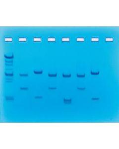 DNA Fingerprinting - Using Restriction Enzymes [1829]
